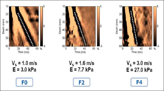 Эластометрия печени на аппарате фиброскан