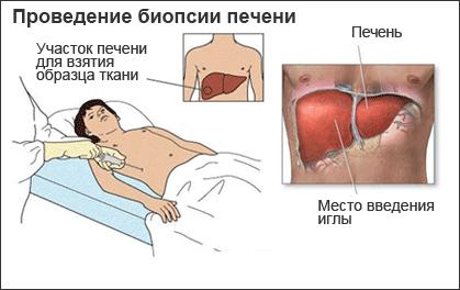 Биопсия печени - как выполняется процедура. Участок печени пациента, из которого берется образец  ткани при биопсии печени.