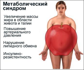 Метаболический синдром - увеличением массы жира в области живота, талии, органов брюшной полости