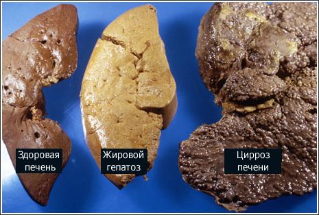 Цирроз печени: симптомы, лечение болезни – «ГЕПАТИТ.РУ»