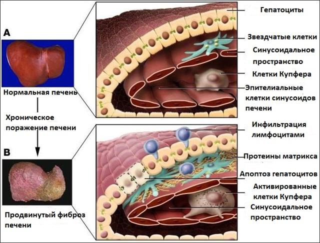 Что такое фиброз печени? Причины, признаки, симптомы, методы ...