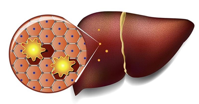 Жировой гепатоз (стеатоз печени) – мировая эпидемия