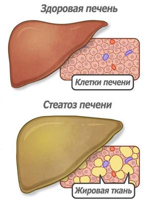 Стеатоз - здоровая печень и печень с признаками стеатоза