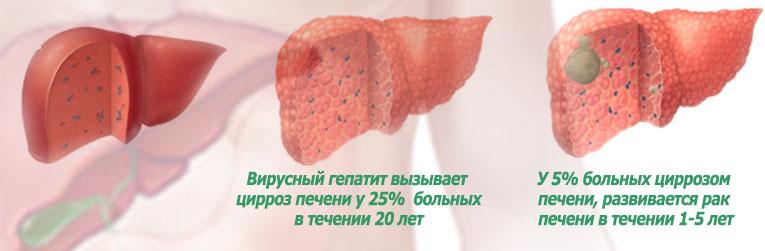 Почему вирусный гепатит нужно лечить?